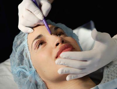 Endolift tekniği yüzün hangi noktalarında uygulanıyor?  Kaşı asacaksak saç içinden giriyoruz, yanağı yukarı çekmek istiyorsak şakaklardan asıyoruz. Çenede ise kulak arkasından giriyoruz.